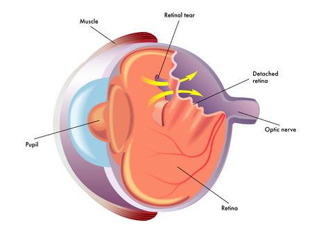 retinal detachment Illustration