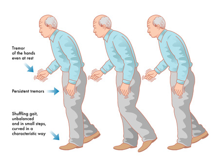 rigidity: Parkinson disease Illustration