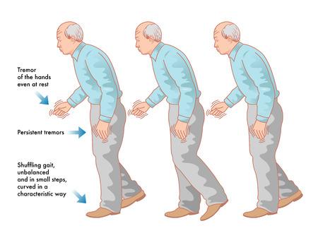 Parkinson disease Stock Illustratie
