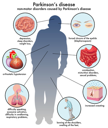non-motor disorders caused by Parkinson disease Vettoriali