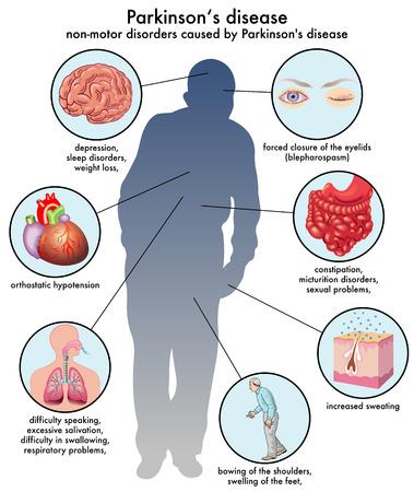 troubles non moteurs causés par la maladie de Parkinson