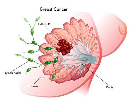 乳がん  イラスト・ベクター素材