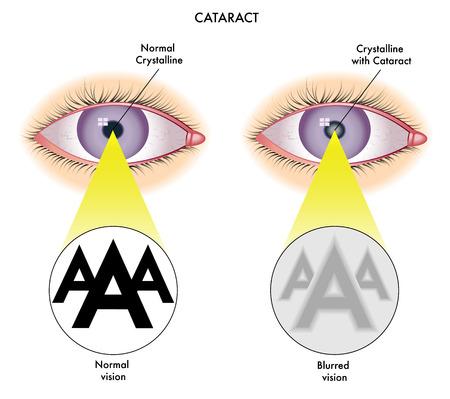 glaucoma: cataract Illustration
