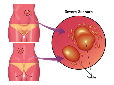 vesicles: severe sunburn