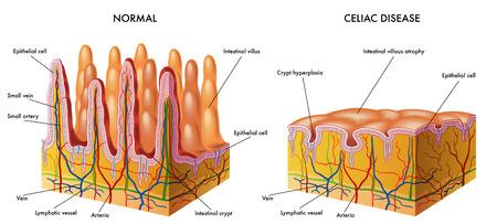 intestino: enfermedad celíaca Vectores