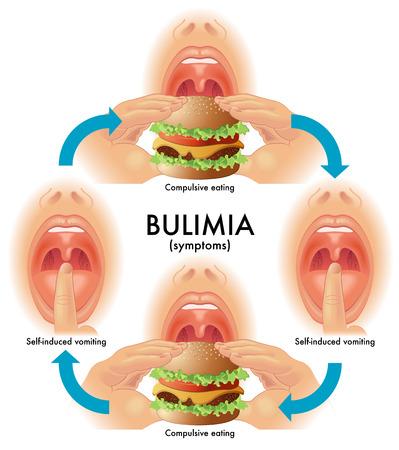 edema: bulimia