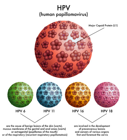 virus infection: HPV  human papillomavirus