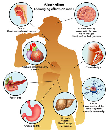 男性のアルコール依存症  イラスト・ベクター素材