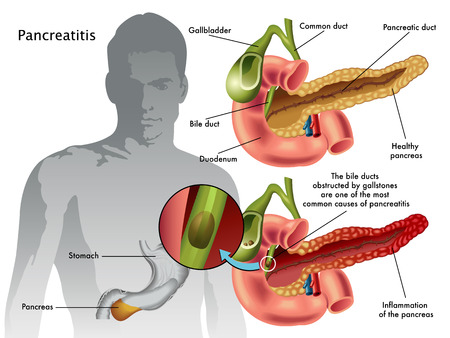 gallbladder: pancreatitis