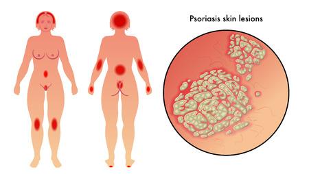 psoriasis Vector