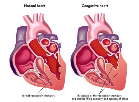 cardíaca congestiva Ilustración de vector