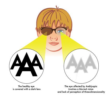 amblyopia Vector