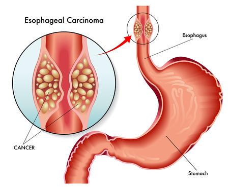 esophageal carcinoma