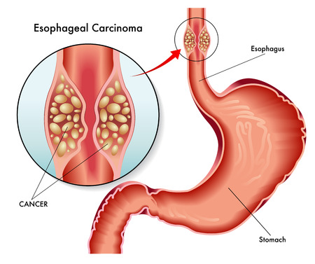 s stomach: esophageal carcinoma