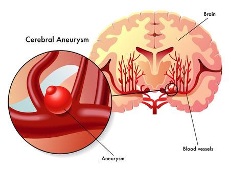 hemorragia: aneurisma cerebral Vectores