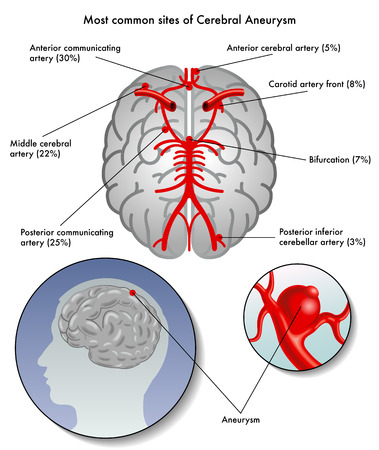sites of cerebral aneurysm
