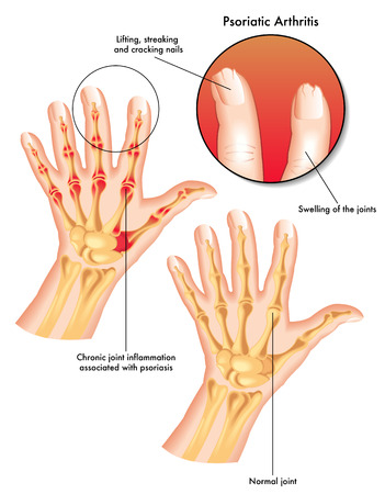 psoriatic arthritis Stock Illustratie