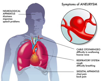 respiratory apparatus: aneurysm symptoms