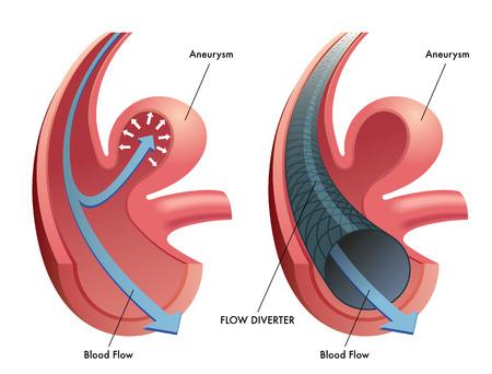flow diverter Illustration