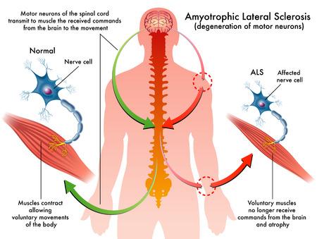 la sclérose latérale amyotrophique