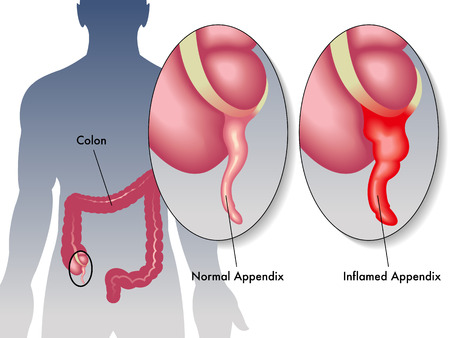 large intestine: appendicitis Illustration