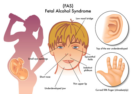 fetal: Sindrome alcolica fetale Vettoriali