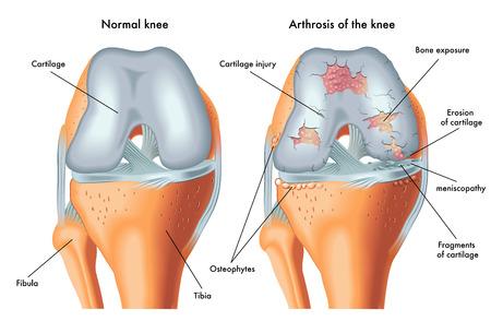 arthrosis of the knee 일러스트