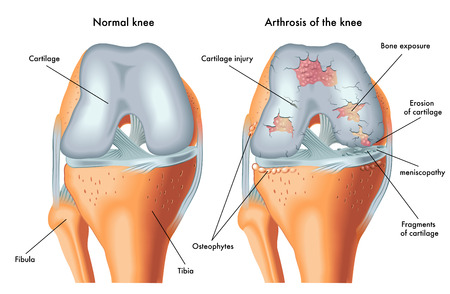 osteoarthritis: arthrosis of the knee Illustration