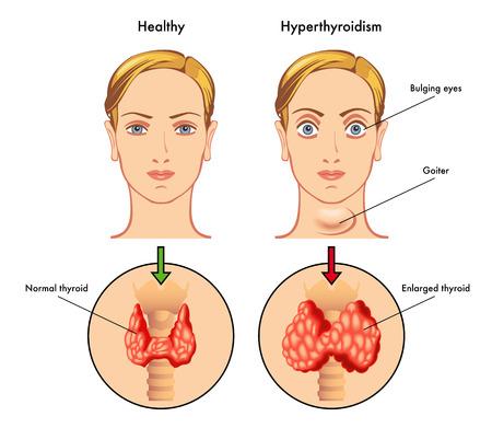 hyperthyroïdie