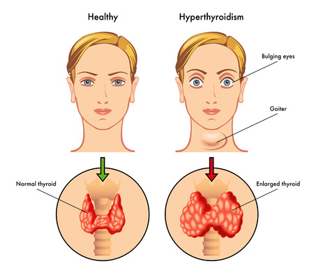 increased: hyperthyroidism