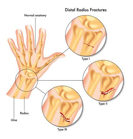fractura: fracturas del radio distal Vectores