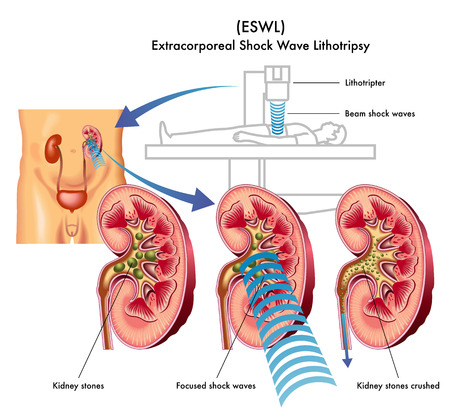 Extracorporeal shock wave lithotripsy