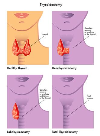 thyroidectomy Stock Vector - 34058854