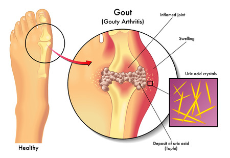 nephropathy: gout disease  Illustration