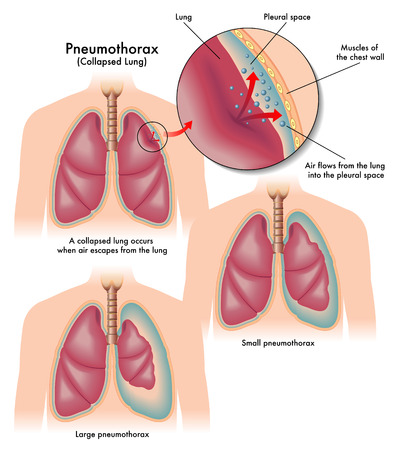 contraction: pneumothorax
