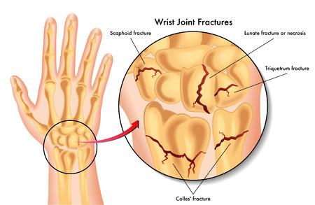 splint: Fracturas en la articulación de la muñeca