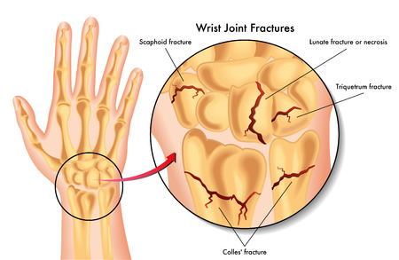 articular: wrist joint fractures
