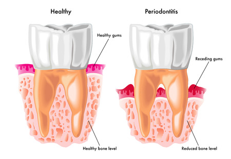 periodontal disease: periodontitis Illustration