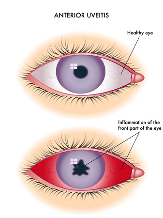 vitreous body: uveitis Illustration