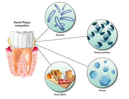 salivary: dental plaque Illustration