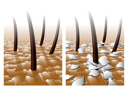 hairs: dandruff Illustration