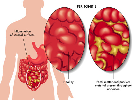 perforation: peritonitis