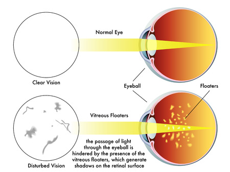vitreous body: vitreous floaters Illustration