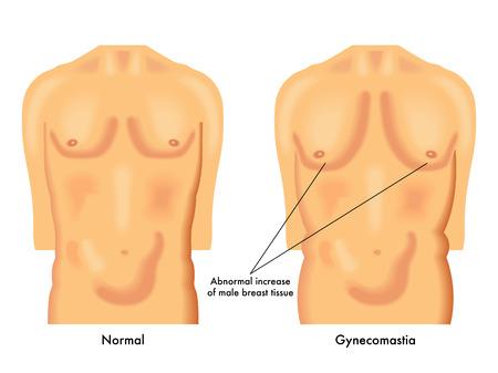 testosterone: gynecomastia