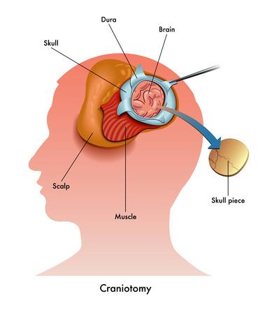 flap: craniotomy