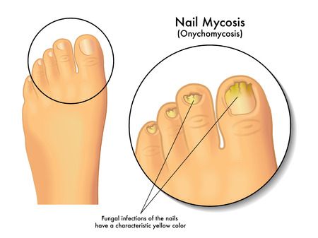 infection: nail mycosis