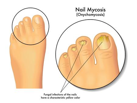 foot fungus: nail mycosis
