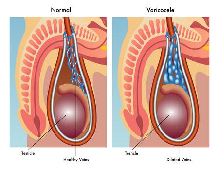 impairment: varicocele