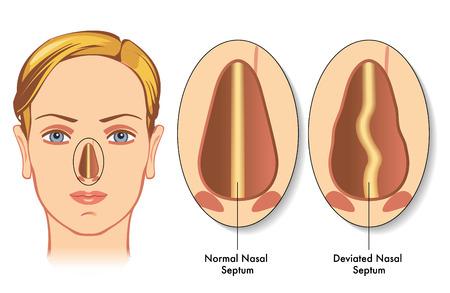 deviated nasal septum Stock Illustratie