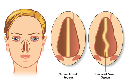 lesions: deviated nasal septum Illustration
